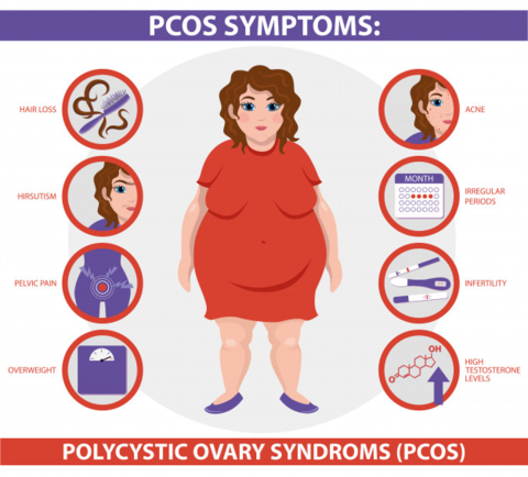 All you need to know about PCOS. Polycystic ovary syndrome (PCOS) is an… |  by &Me - Women's Health Brand | Medium